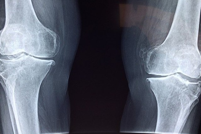 Disability for Knee Injury